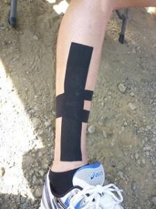 kinesiology tape shin splint